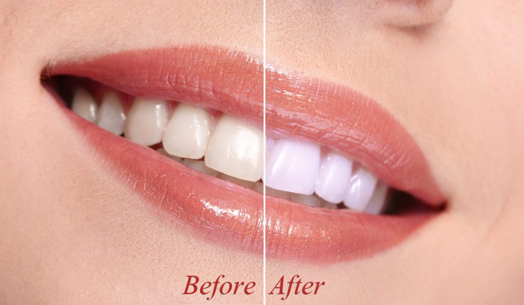 Trends in Teeth Whitening Products